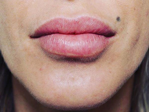Before-Correction asymétrie lèvre inférieure