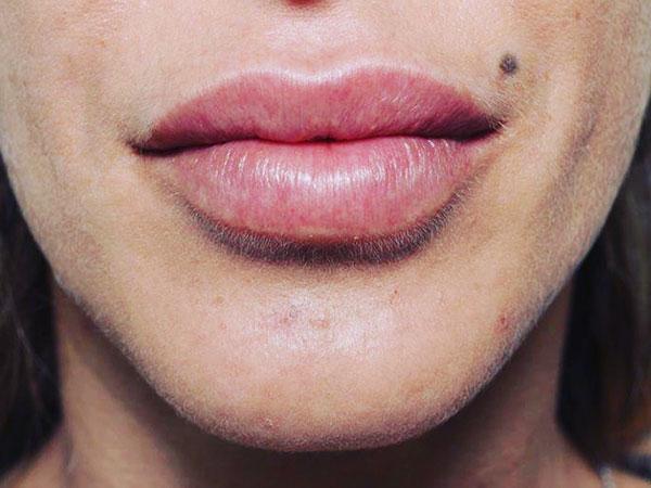After-Correction asymétrie lèvre inférieure