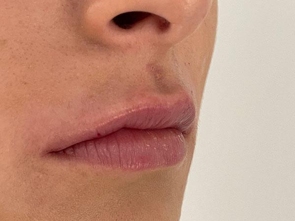 After-Lèvres avec acide hyaluronique