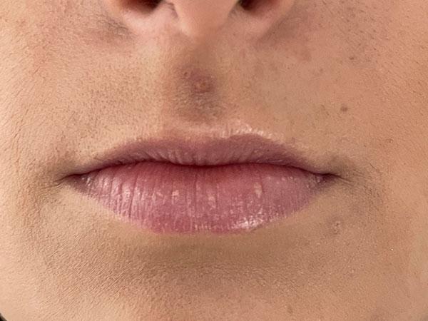 Before-Lèvres avec acide hyaluronique