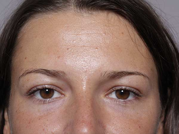 After-Injection acide hyaluronique cernes