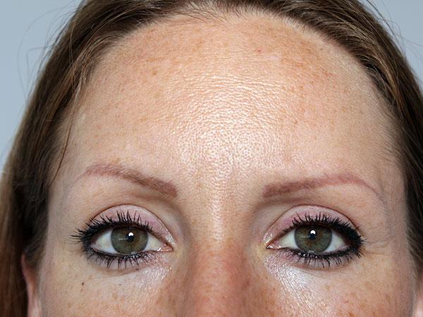 Before-Injection de botox