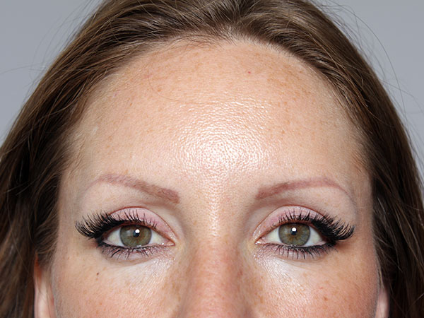 After-Injection de botox
