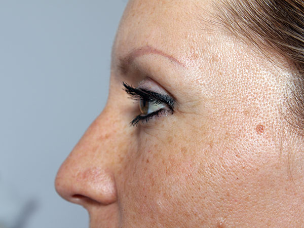 Before-Injection botox - Glabelle