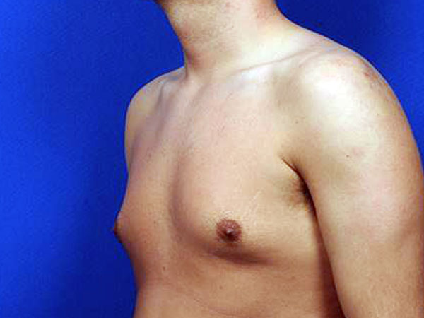 Before-Gynécomastie par cryolipolyse coolsculpting®