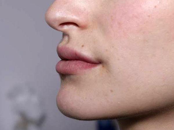 After- Lèvres avec acide hyaluronique