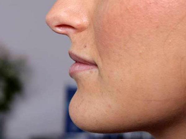 Before- Lèvres avec acide hyaluronique