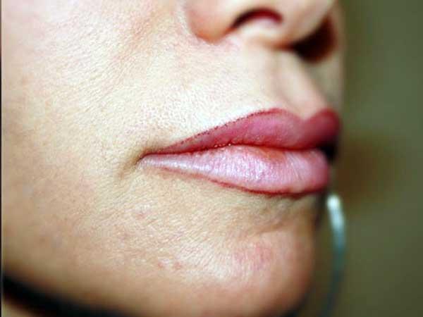 After-Injection des plis d'amertume par Voluma®