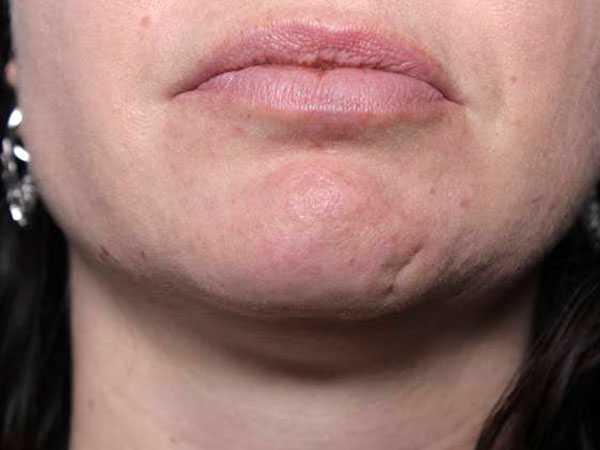 Before-Injection de Botox