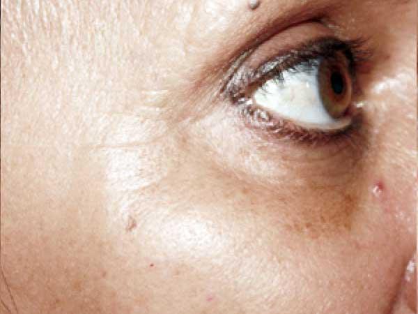 After-Injection d'acide hyaluronique sur les pommettes