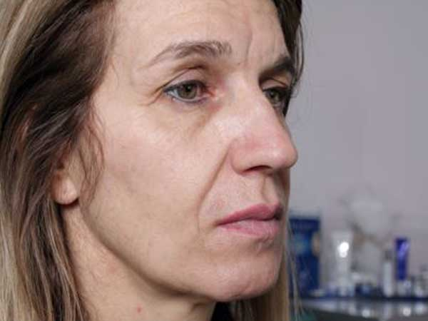 Before-Injection d'acide hyaluronique sur les pommettes
