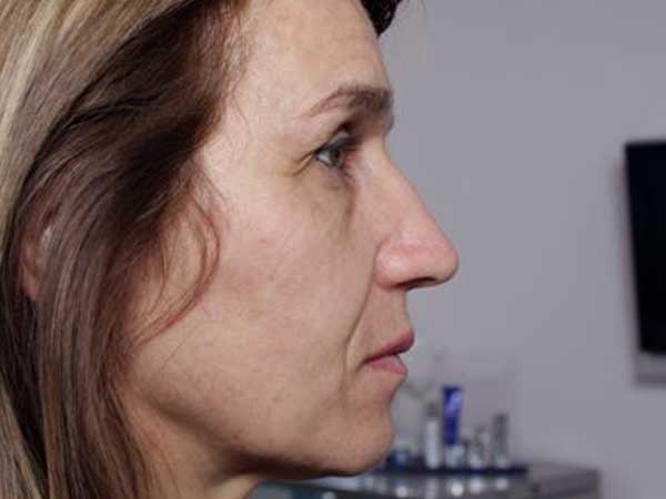 Before-Injection acide hyaluronique joues et pommettes