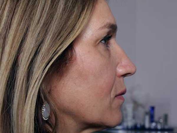 After-Injection acide hyaluronique joues et pommettes