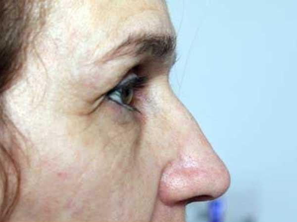 Before-Injection Acide hyaluronique pommettes et joues