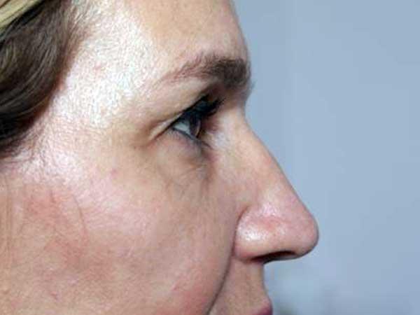 After-Injection Acide hyaluronique pommettes et joues