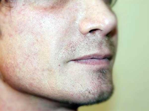 After-Correction des sillons nasogéniens