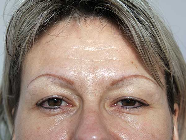 Before-Injection de botox - 41 ans
