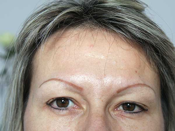 After-Injection de botox - 41 ans