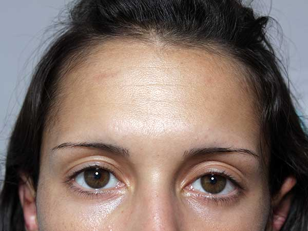 Before-Injection de botox - 23 ans