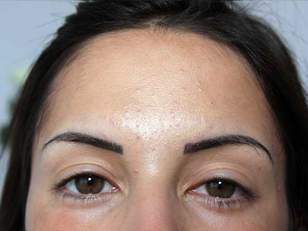 After-Injection de botox - 23 ans