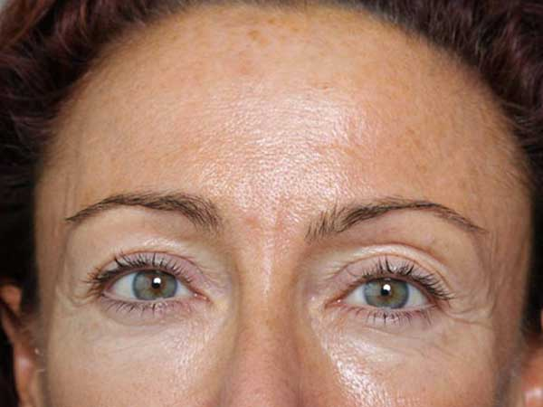 Before-Injection botox et acide hyaluronique