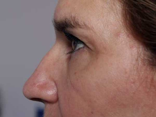 After-Injection Botox patte d'oie