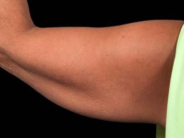 After-Cryolipolyse par coolsculpting® face interne des bras