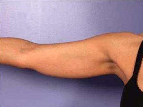 Before-Cryolipolyse par coolsculpting® face interne des bras