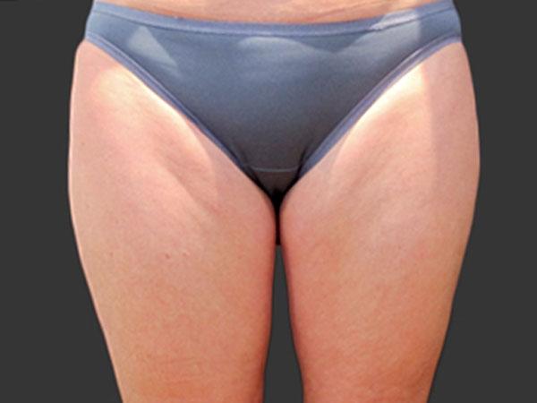 Before-Cryolipolyse par Coolsculpting® face interne des cuisses