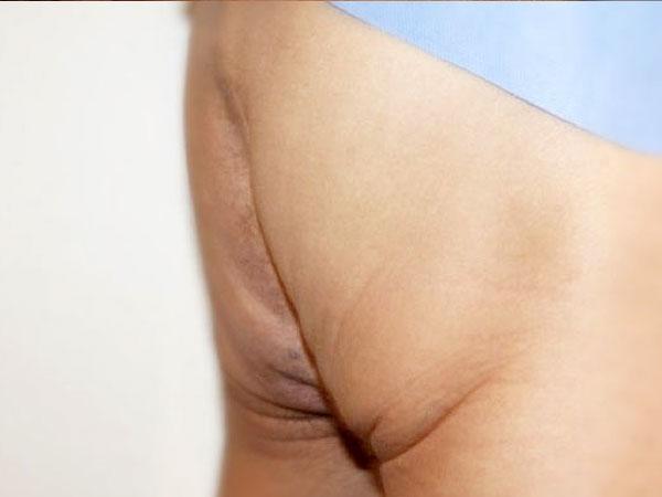 Before-Des fesses traitées par macrolane