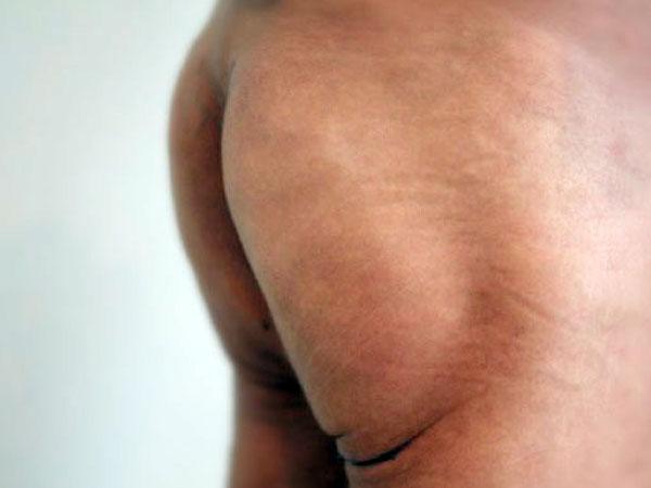 After-Des fesses traitées par macrolane