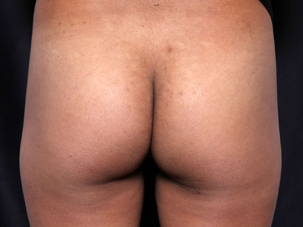 Before-Injections fesses