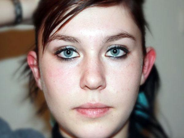 Before-Otoplastie face
