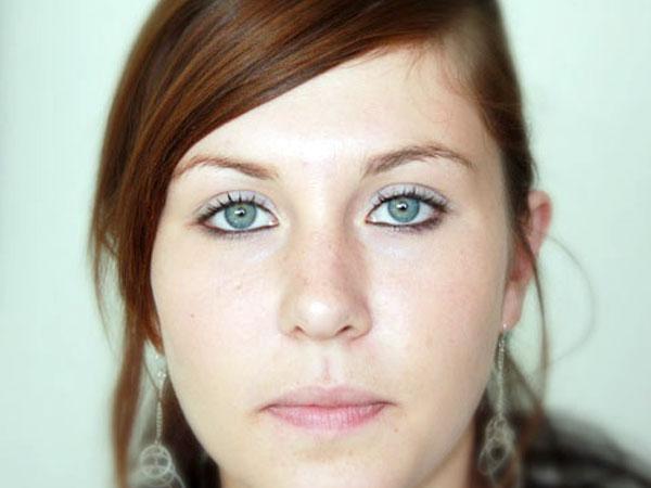 After-Otoplastie face
