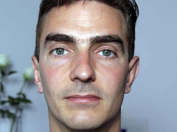 After-Otoplastie ou chirurgie esthétique des oreilles