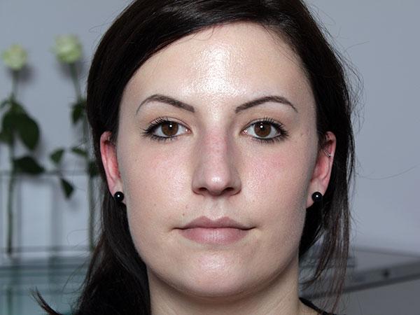 Before-Rhinoplastie chirurgicale