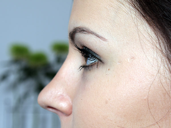 After-Rhinoplastie Chirurgicale