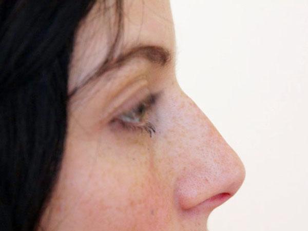 Before-Racine du nez traitée par acide hyaluronique