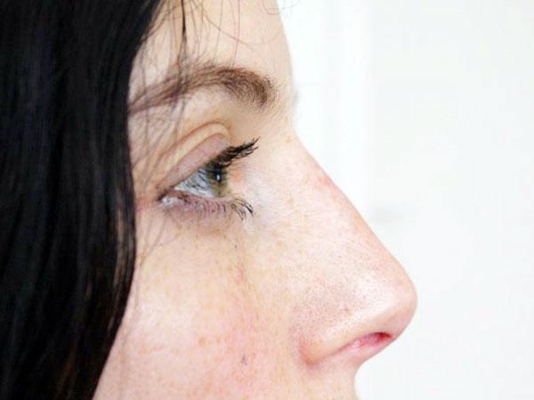 After-Racine du nez traitée par acide hyaluronique