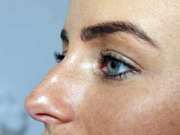 Before-Rhinoplastie médicale - Injection d'acide hyaluronique