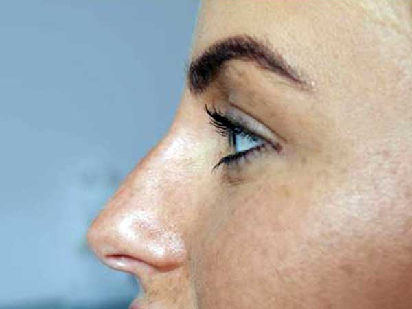 After-Rhinoplastie médicale - Injection d'acide hyaluronique